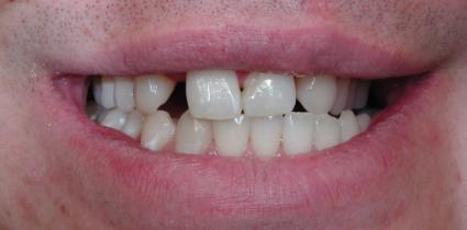 dental-implant-before