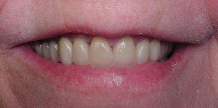 immediate-load-dental-implant-after