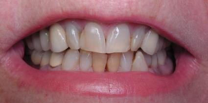 immediate-load-dental-implant-before