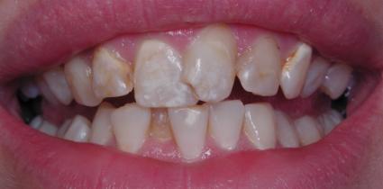 smile-makeover-before